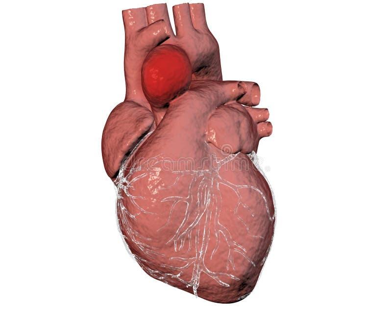 Aneurisma van stijgende aorta stock illustratie