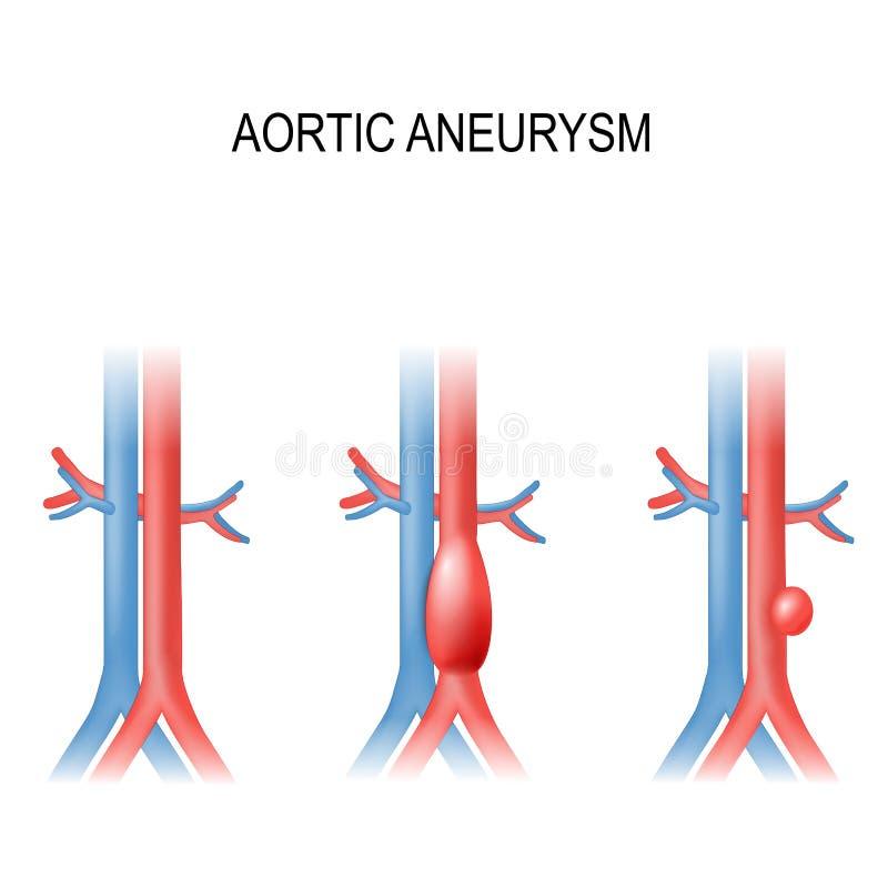 Aneurysm aórtico abdominal ilustração do vetor