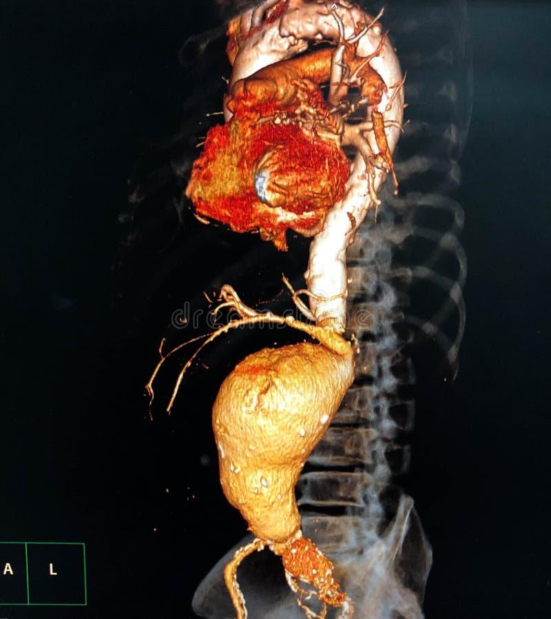 Aneurysm aórtico abdominal imagen de archivo libre de regalías