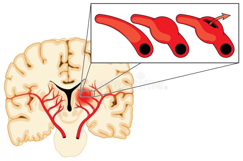 Aneurysm cérébral illustration de vecteur