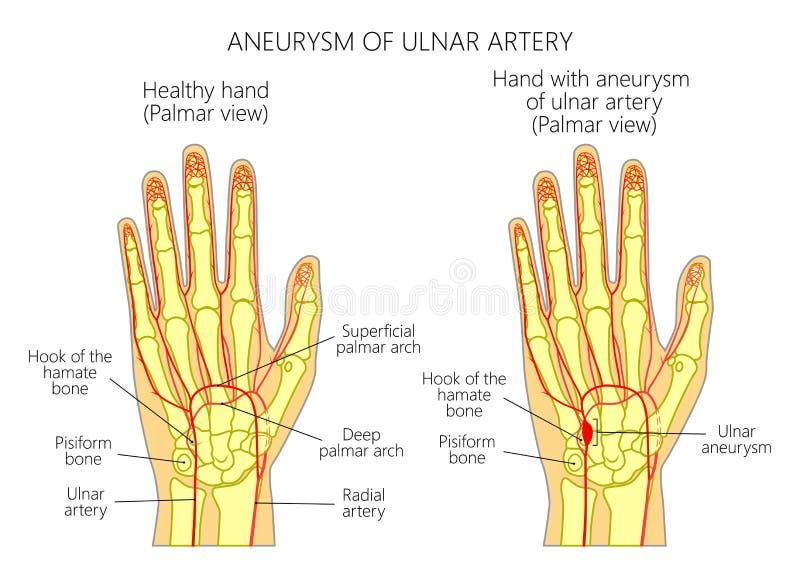 aneurysm cubital Posts-traumático de la arteria situado adyacente al hueso de hamate stock de ilustración