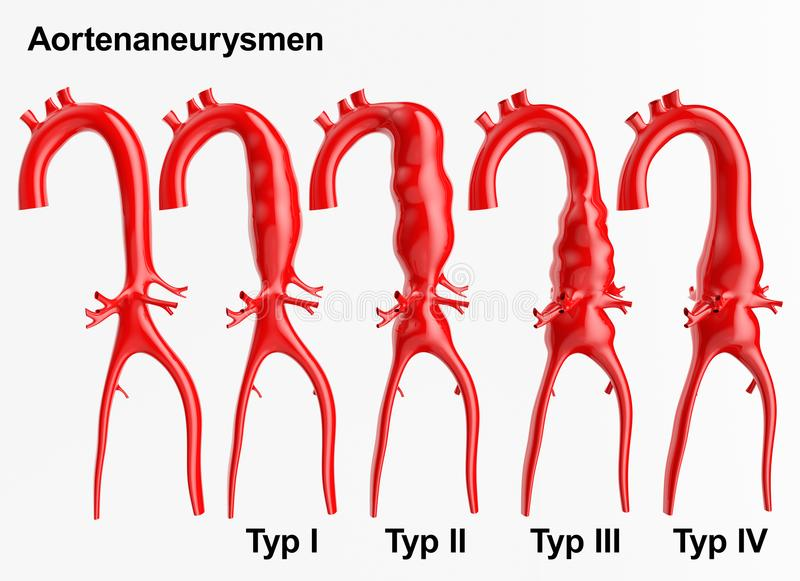 Aneurysm - 3D rendering vector illustration