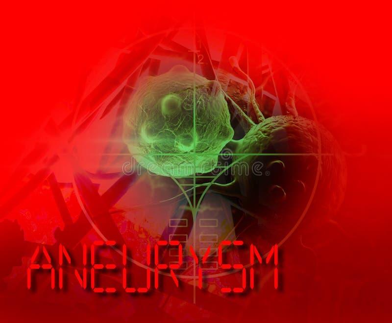 aneurysm del cerebro stock de ilustración