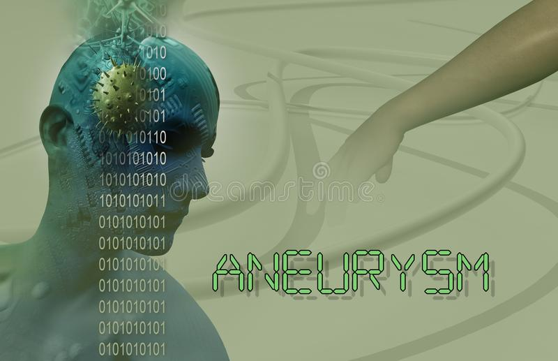 aneurysm del cerebro ilustración del vector