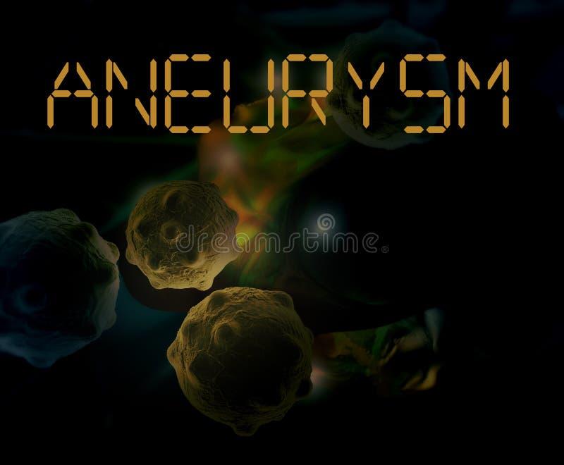 aneurysm del cerebro libre illustration