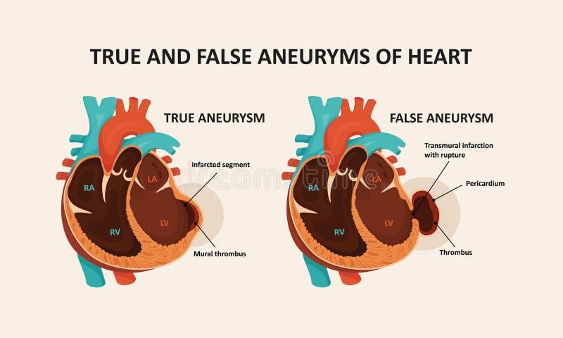 Aneurysm del corazón ilustración del vector