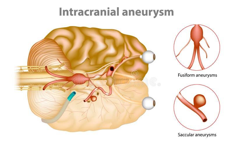Aneurysm intra-crânien ou aneurysm de cerveau illustration libre de droits