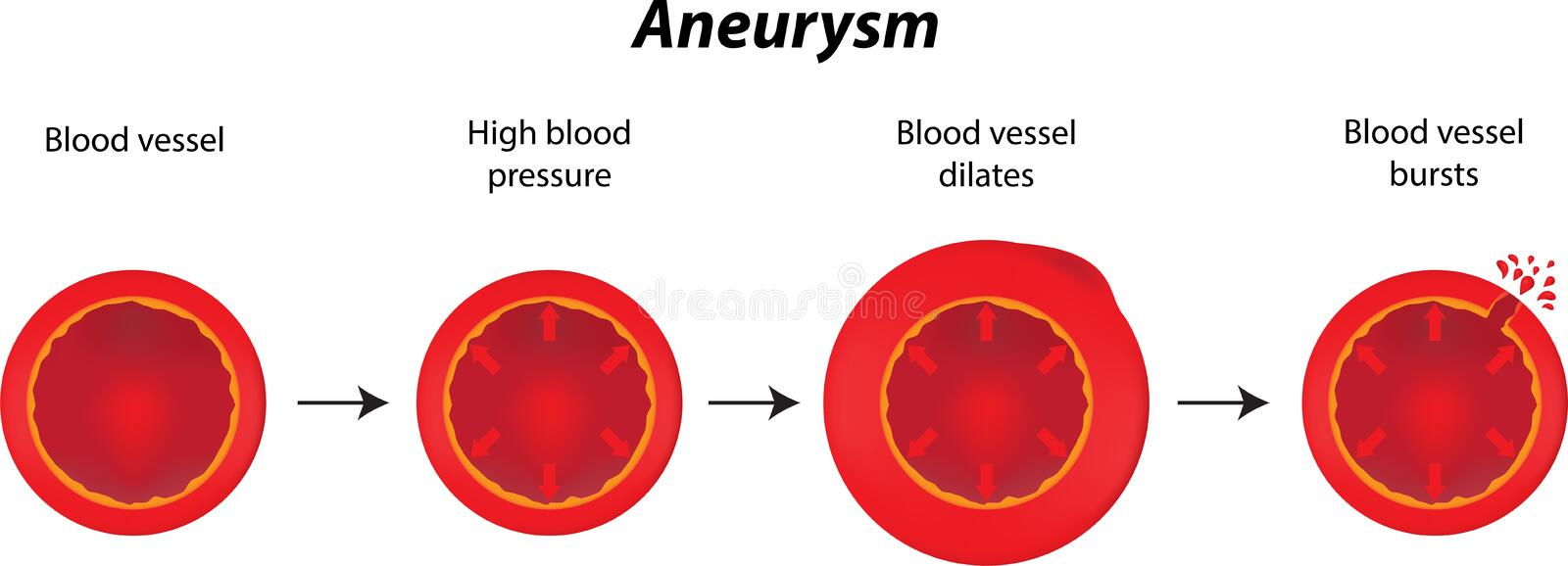 Aneurysm. A labeled picture of the progression of an aneurysm royalty free illustration