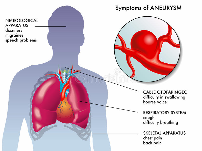 Aneurysm symptoms vector illustration