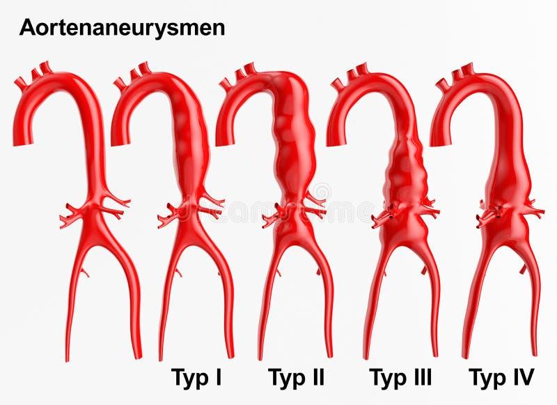 Aneurysm - tolkning 3D vektor illustrationer
