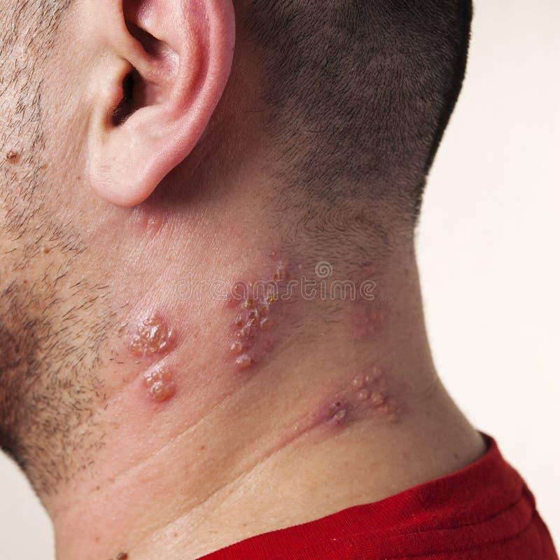 Angehobene rote Stöße und Blasen verursacht durch das Schindelvirus lizenzfreie stockfotos