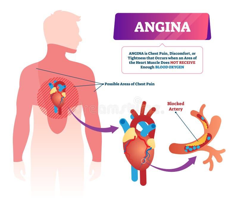 Angina wektoru ilustracja Przylepiający etykietkę medyczny serce problem i ilustracja wektor