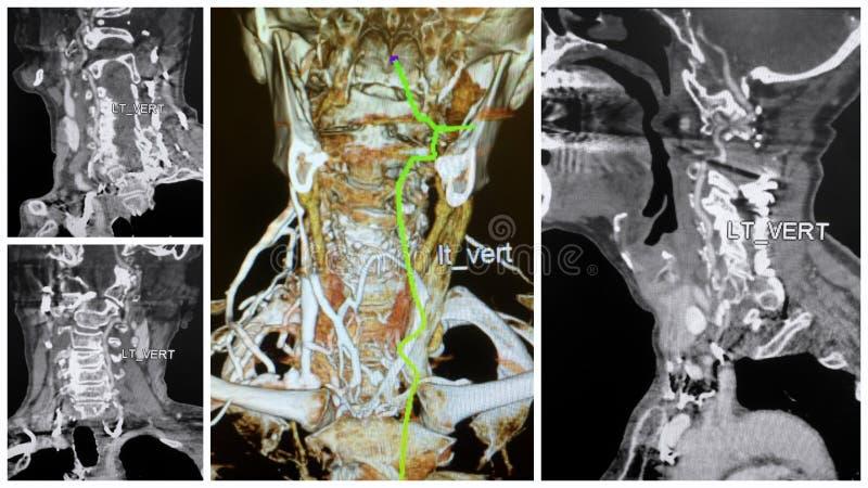 angio 3D Tomographiescan ließ Collage der vertebralen Arterie stockbild