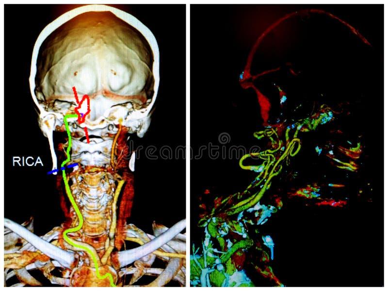 Angio neuroct scherp rmcainfarct van het halsexamen stock fotografie