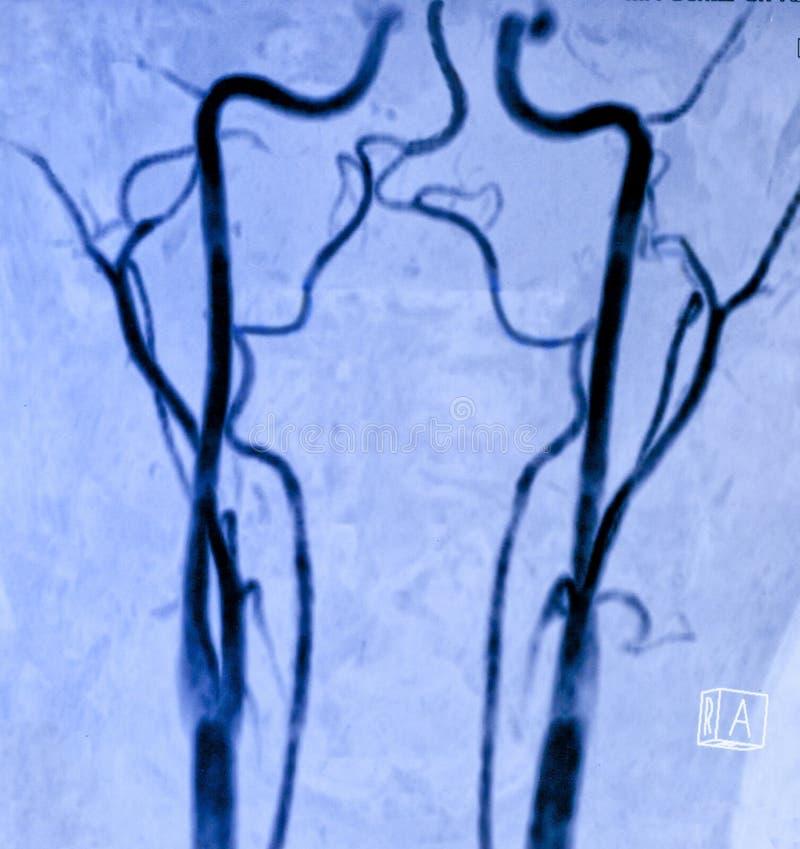 Angiografía de resonancia magnética carótida fotos de archivo libres de regalías