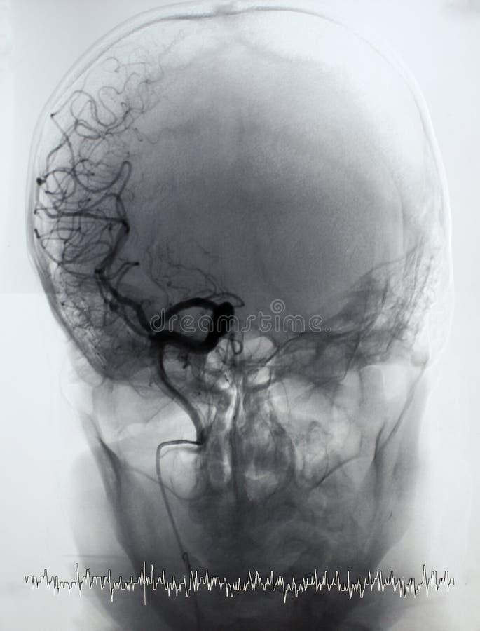Angiografia del cervello, arteriografia fotografia stock