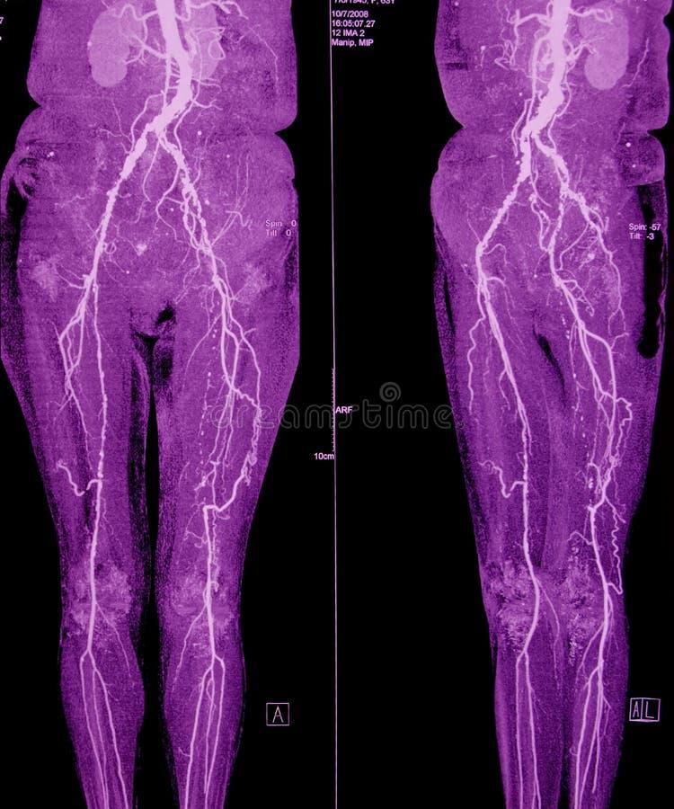 Angiografia di CT delle arterie del piedino e pelviche fotografia stock