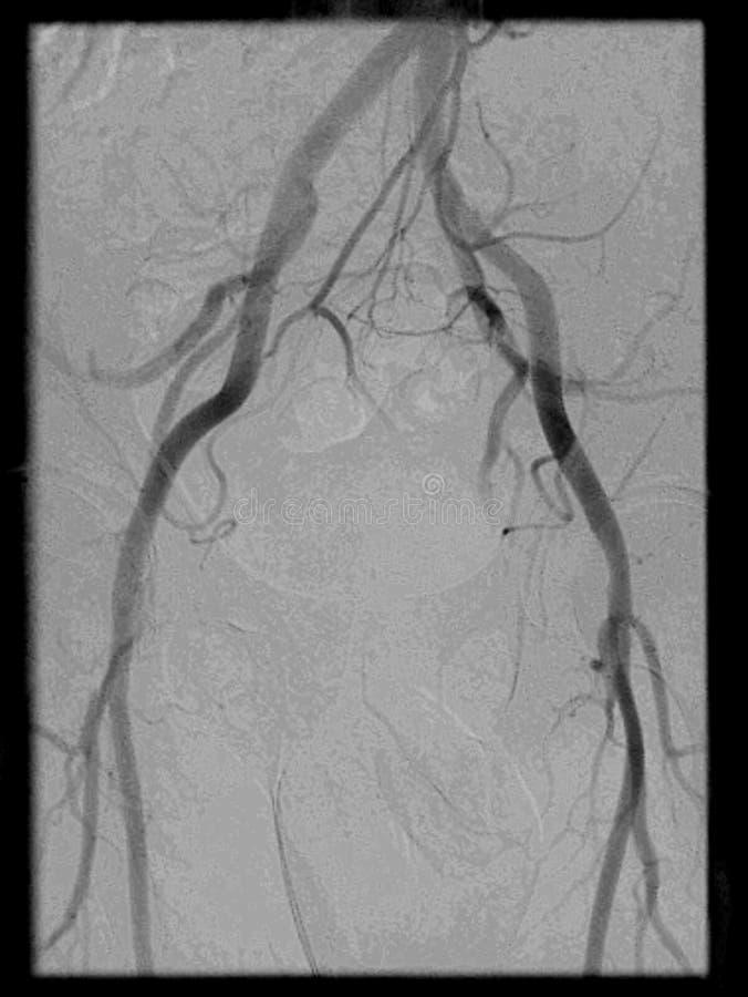 Angiografia pelvis region zdjęcia royalty free