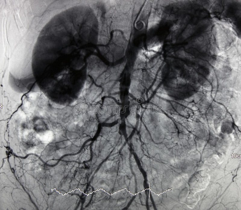 angiografii aorty gałąź zdjęcie royalty free