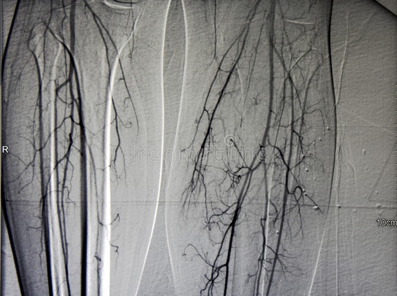 Angiogram of leg vessels, both calf. Angiogram of leg vessels, atherosclerosis, classic angiography of both calf (Digital subtraction angiography royalty free stock photography