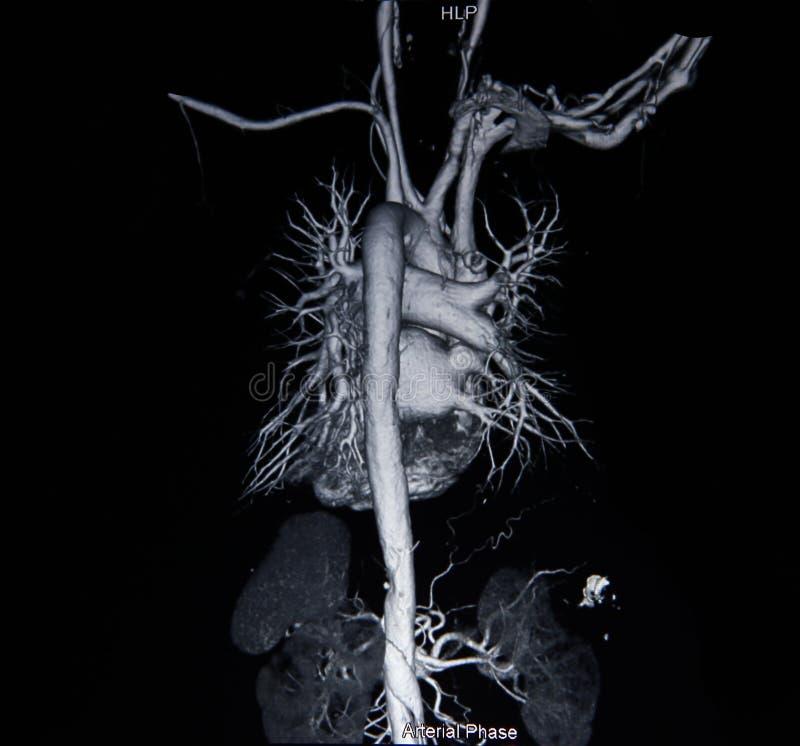 Angiograma da varredura do Ct (tome a foto do raio X do filme) imagem de stock