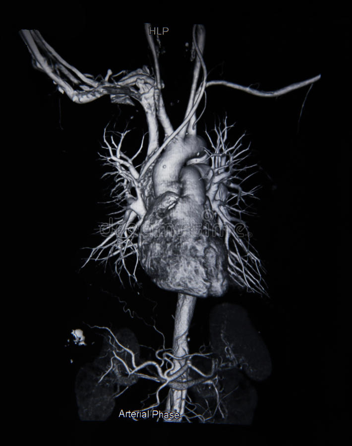 Angiograma da varredura do Ct (tome a foto do raio X do filme) fotografia de stock