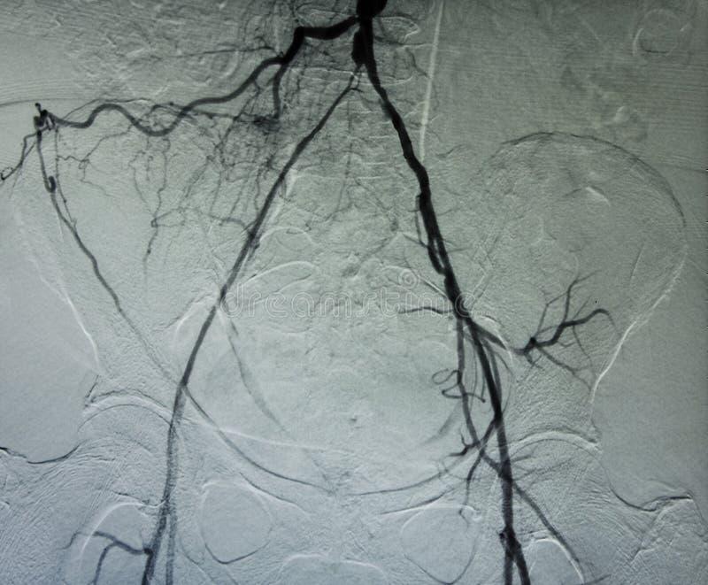 Angiograma de recipientes pélvicos fotos de archivo