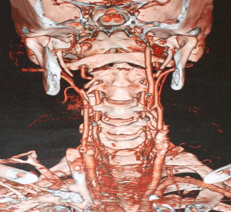 Angiographie CT image stock
