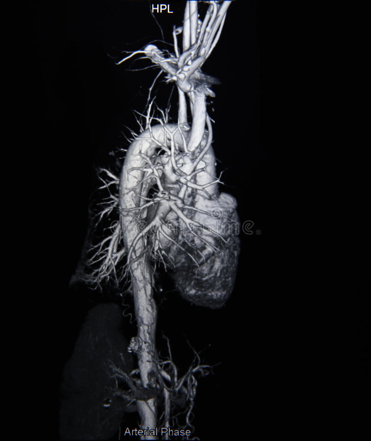 Angiographie de balayage de Ct (prenez la photo du rayon X de film) photos libres de droits