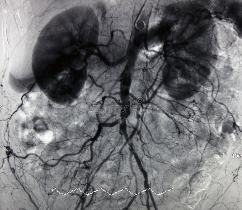 angiographyaorta royaltyfri foto