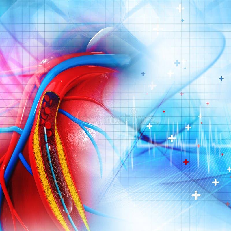 Angioplastia de Stent ilustración del vector