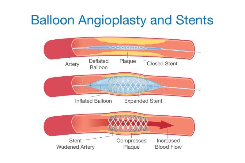 Angioplastia del globo y procedimiento de los stents libre illustration