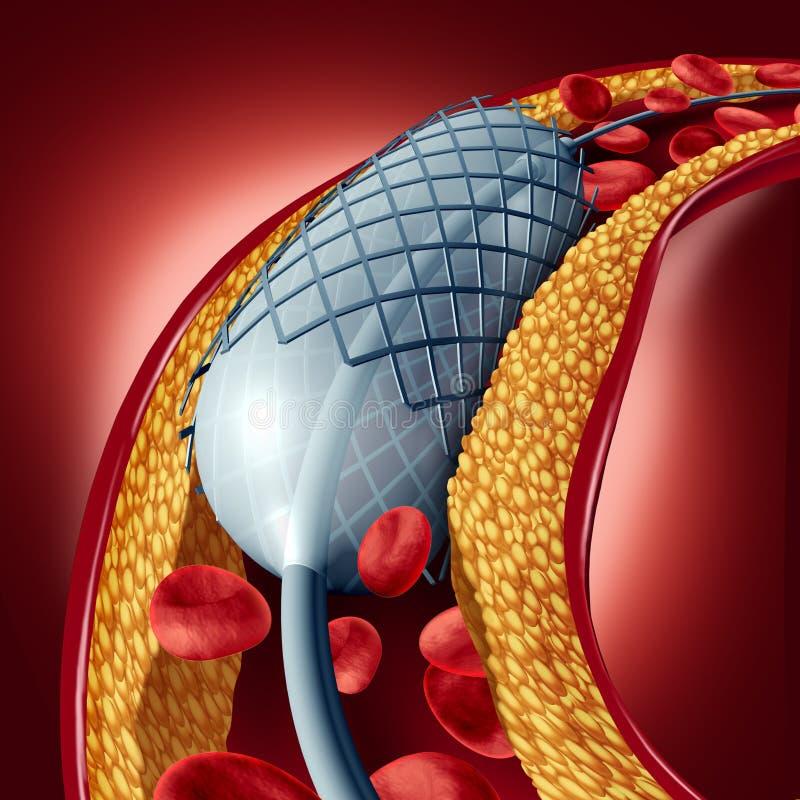 Angioplastia y concepto del Stent stock de ilustración