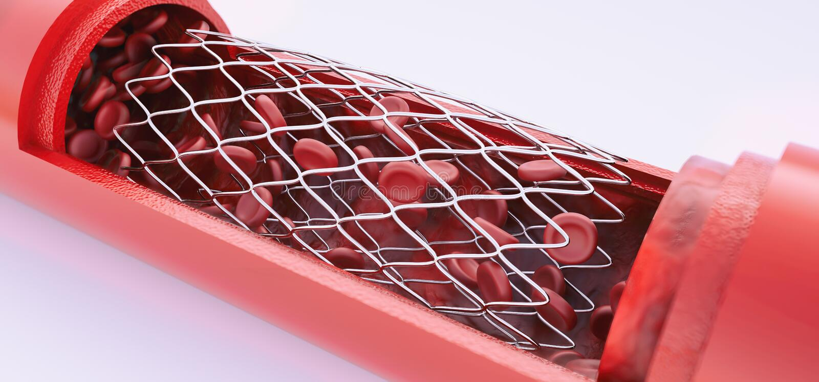 Angioplasty with stent placement- 3D rendering vector illustration