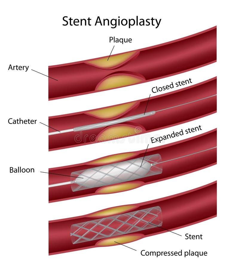 Angioplasty van Stent royalty-vrije illustratie