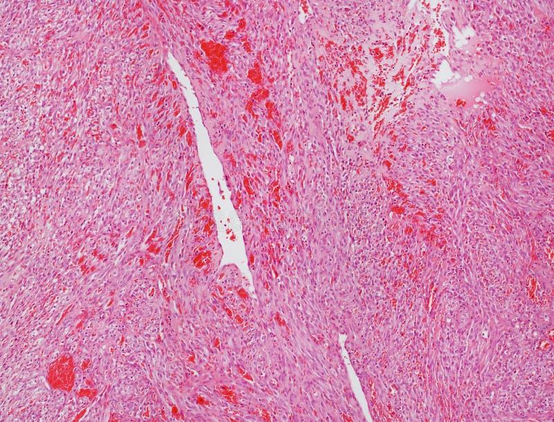 angiosarcomamicrograph royaltyfria foton
