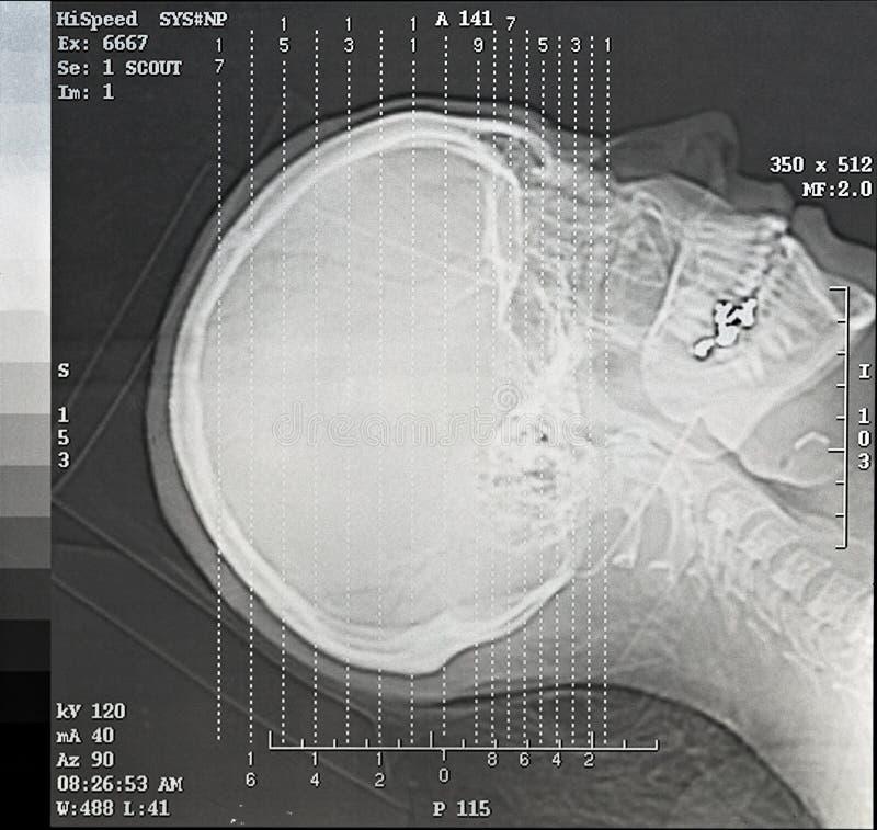 Angoli di esplorazione di CT immagine stock