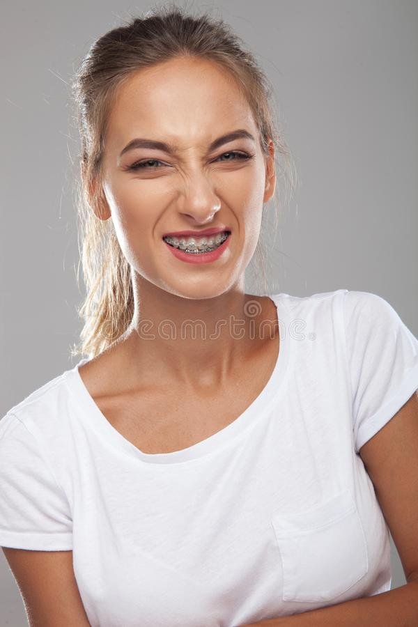 Angry young woman wearing braces on teeth royalty free stock photos