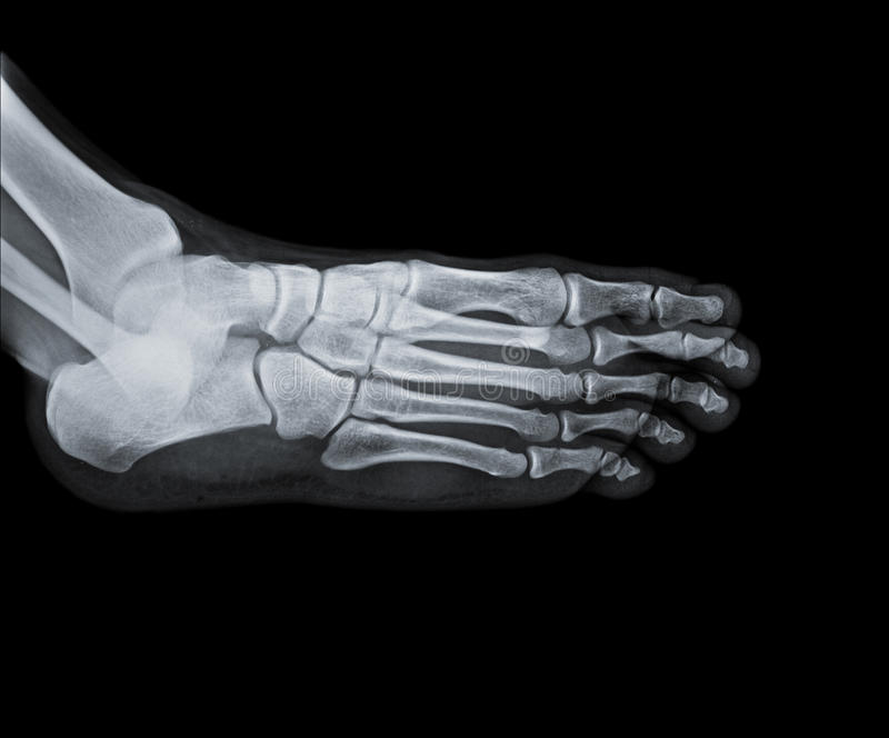 Ankle joint with foot and tibia stock photo