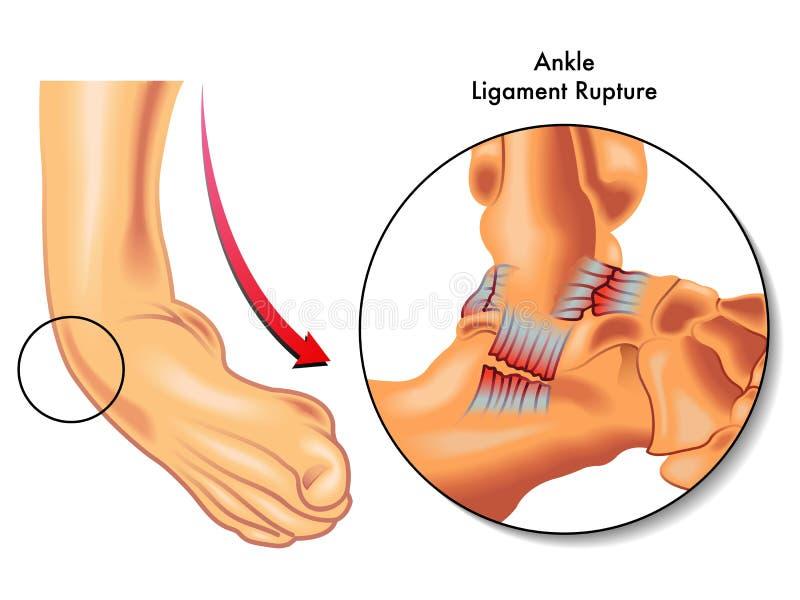 Ankle ligament rupture royalty free illustration