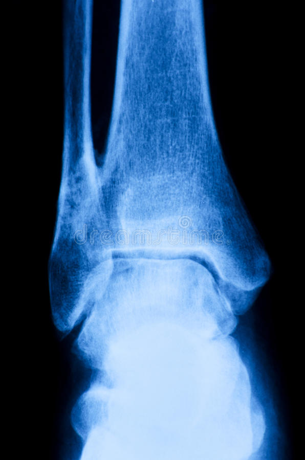 Ankle X Ray Stock Photo Image Of Anatomy Patient Foot 44472066