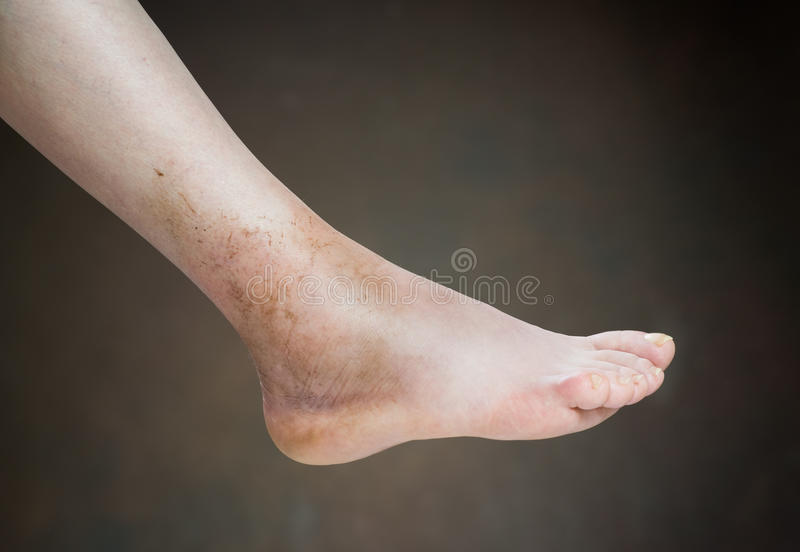 Ankle sprain royalty free stock images