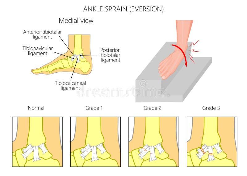 Ankle sprain.Eversion royalty free illustration