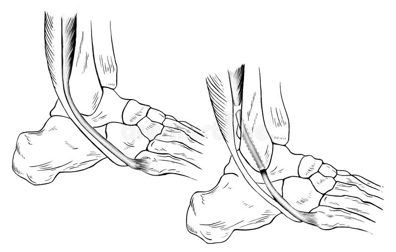 Ankle - Sprained royalty free illustration
