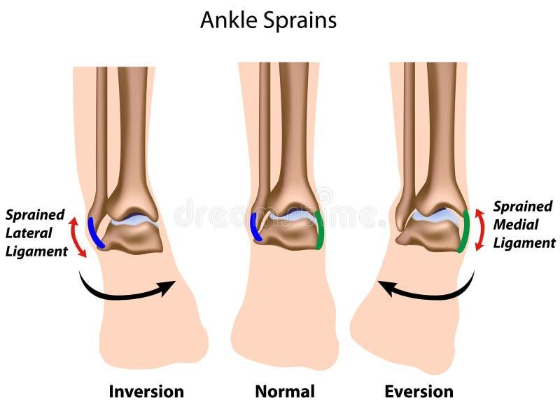 Ankle sprains royalty free illustration