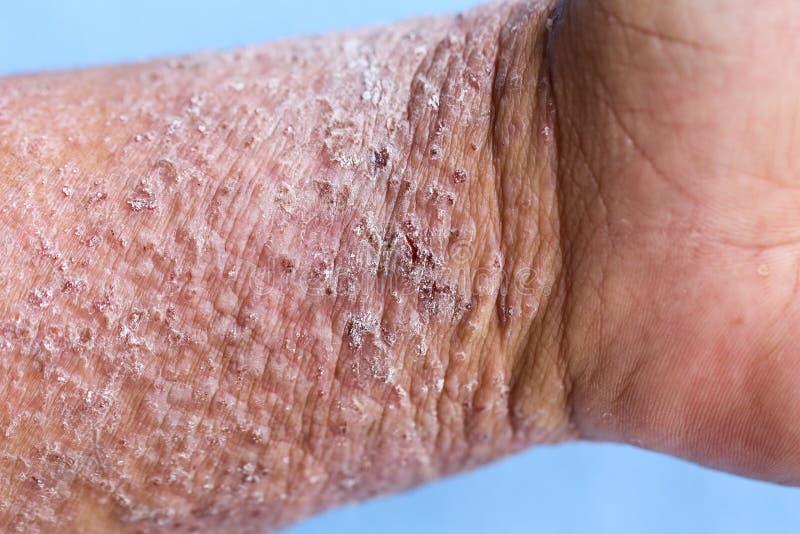 ANNONSEN för Atopic dermatit, också som är bekant som atopic eksem, är en typ av inflammation av huddermatiten royaltyfri fotografi