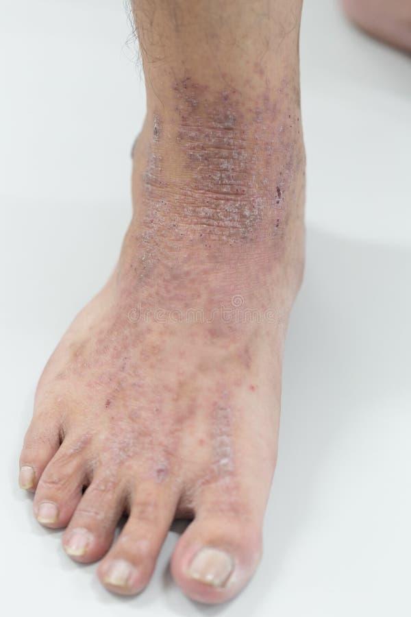 ANNONSEN för Atopic dermatit, också som är bekant som atopic eksem, är en typ av inflammation av huddermatiten arkivbilder