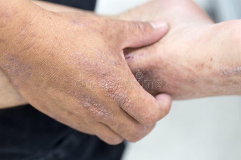 ANNONSEN för Atopic dermatit, också som är bekant som atopic eksem, är en typ av inflammation av huddermatiten royaltyfria bilder