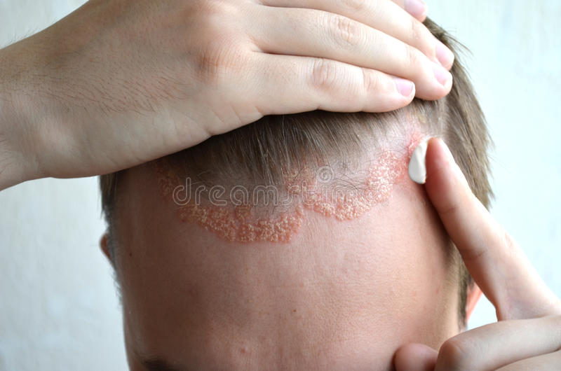 Anoint with cream, ointment, medicine forehead, hair line, scalp with psoriasis, dermatitis, problem skin, eczema stock photography