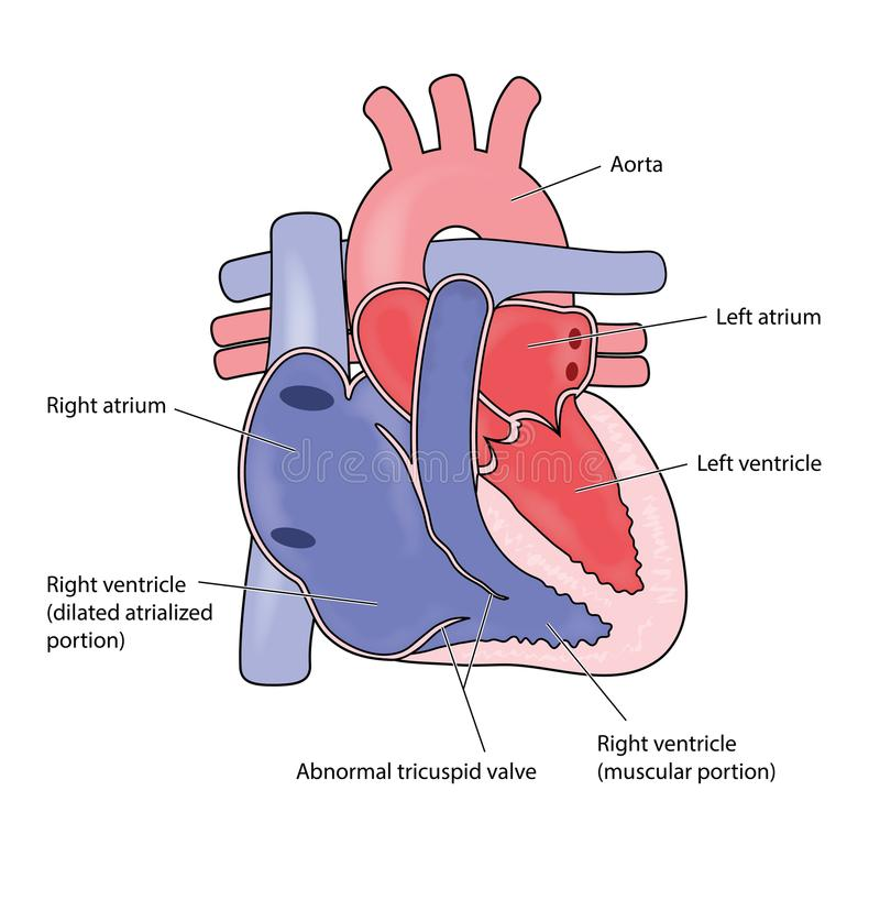 Anomali för hjärta för Ebstein ` s vektor illustrationer